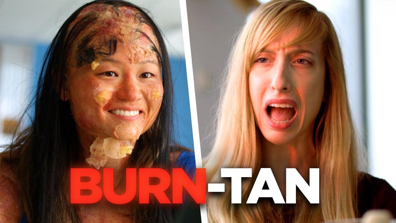 Don't Worry: My Sunburn Will Turn Into a Tan