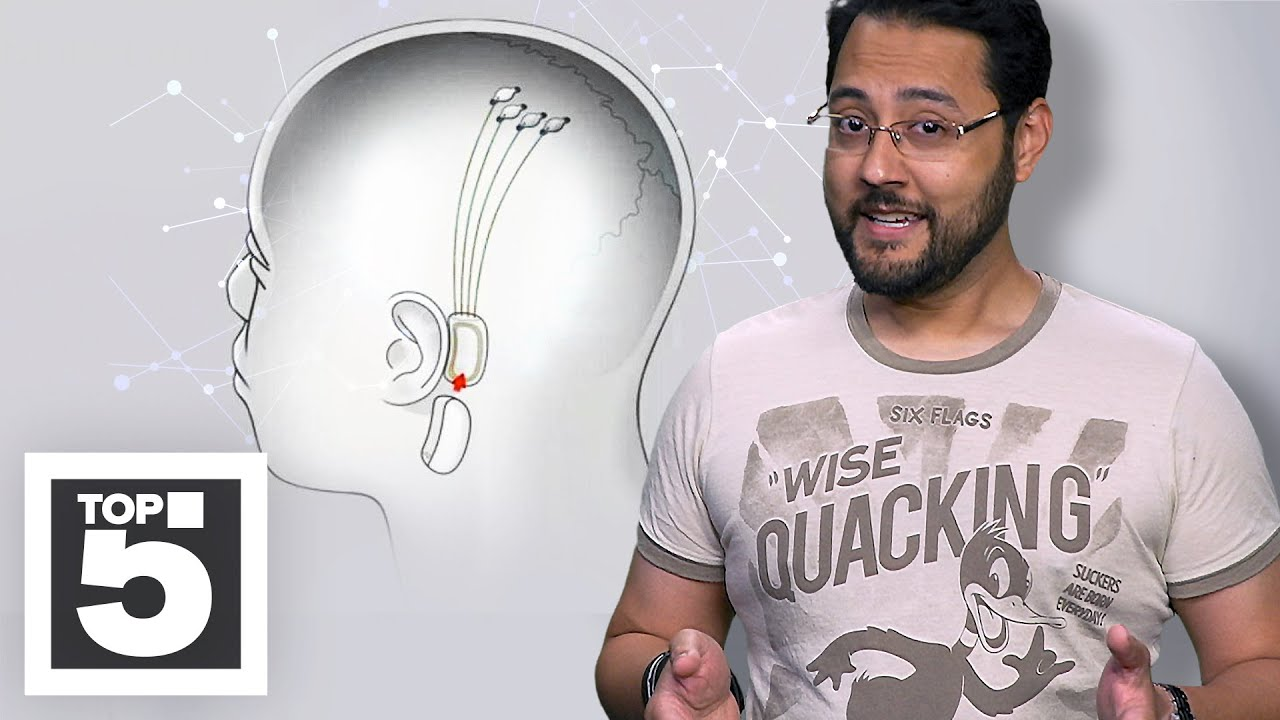 What you should know about the Neuralink brain implant